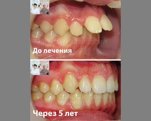 До и после лечения брекетами вид сбоку