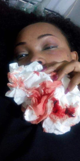 mercy aigbe battered face