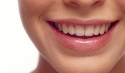 Kebiasaan Buruk Yang Dapat Merusak Gigi, Namun Sering Dilakukan