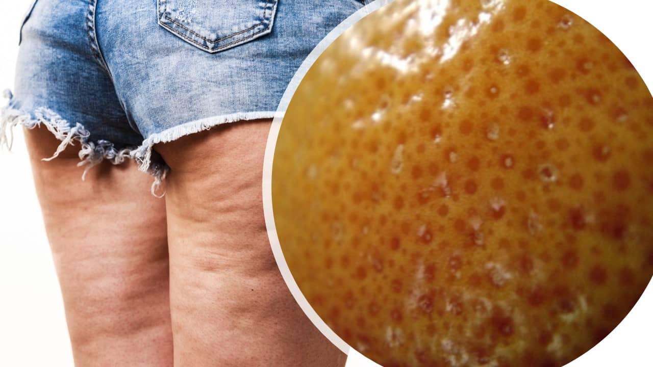 eliminar celulitis de gluteos