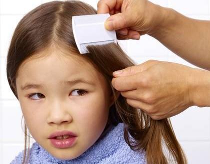 Cara membasmi kutu rambut pada anak dengan minyak zaitun daun sirsak cuka secara cepat