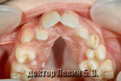 Ортодонтическое лечение.