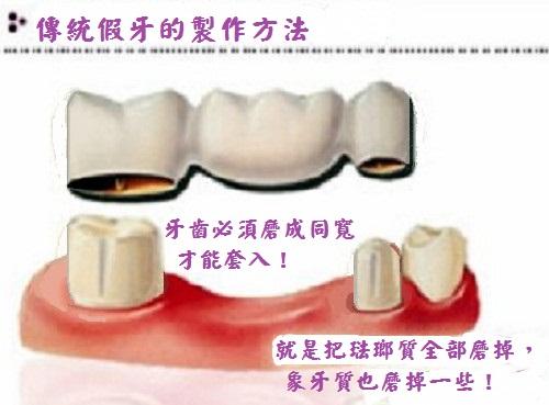 【牙套·神經】拔神經 牙套 – TouPeenSeen部落格