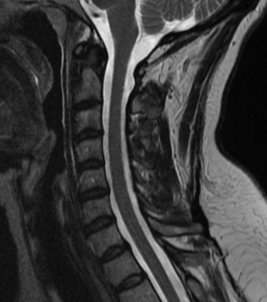 If you were like me and played rugby and computer games in high school, no chance your spine looks this good.