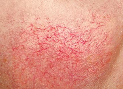 corso trucco make up preparazione pelle skincare acne vitiligine dermatite cosmetologia