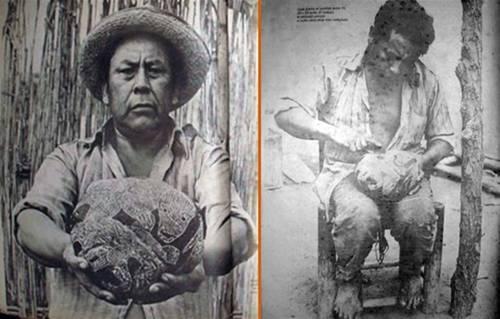 En la foto: Basilio Uchuya, quien se atribuía la autoría de los polémicos grabados.