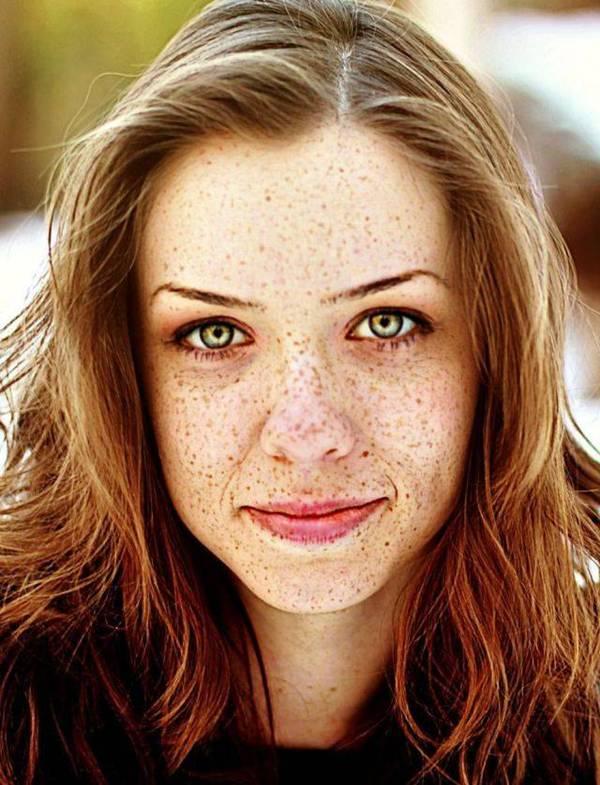 WOndorblogspotcom Pretty Girls With Freckles On Face