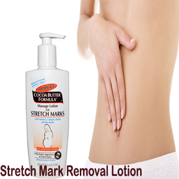 Online Shopping Stretch Marks Removal Cream Pakistan