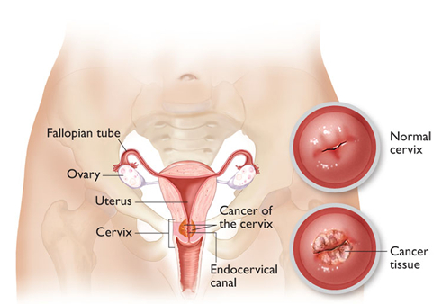 Here's 10 Early Stage Cervical Cancer Symptoms And Prevention