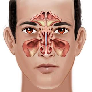 Triệu chứng bệnh viêm xoang trán