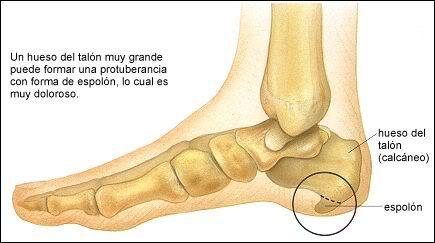 dolor en los talones delos pies despues de caminar