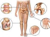Bisakah Rematik Disembuhkan Menurut dr. Bambang Setyohadi SpPD-KR
