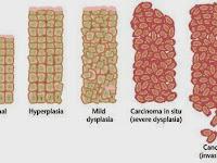 Pengertian Kanker dan Sebutan dalam ilmu kesehatan