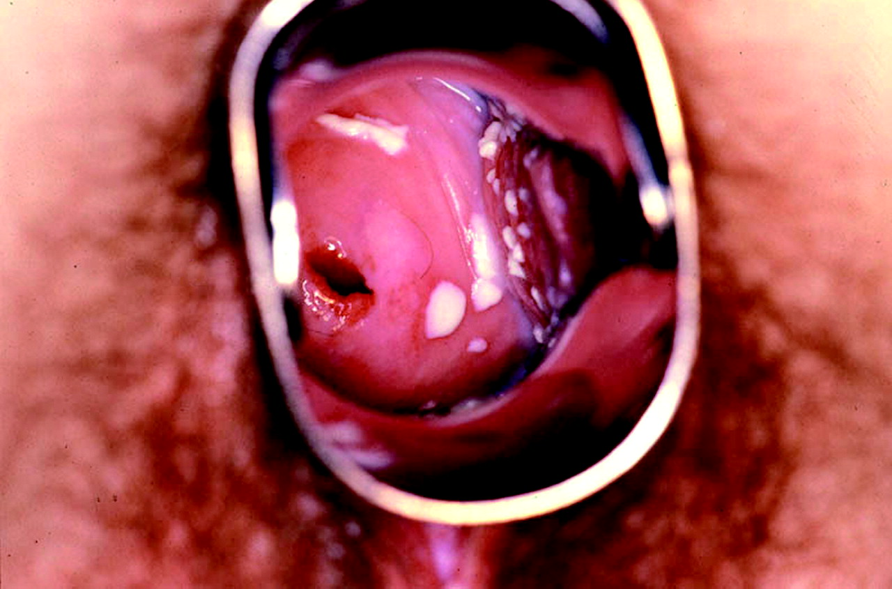 Brown Vaginal Discharge Symptoms, Treatments for Vaginal Discharge