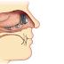 Mengenal Penyakit Polip atau tumor Hidung Dan Cara Pengobatanya Secara Alami