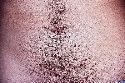 Unfortunately! Yes, excessive pubic hairy female 4922 opinion
