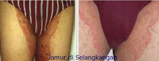 Obat Gatal Jamur pada Selangkangan di Apotek Umum