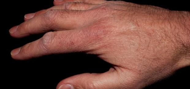 10 دقائق فقط تقضي على جفاف اليدين القوي