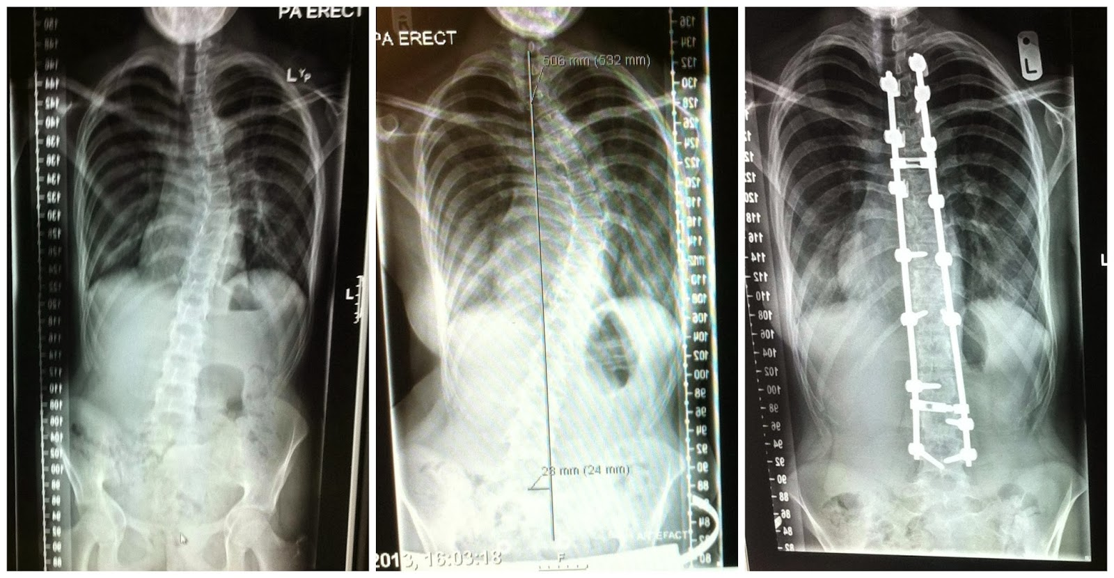 Scoliosis Spinal Fusion X-Rays