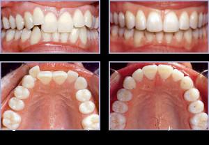 Niềng răng không mắc cài cho hiệu quả tối ưu
