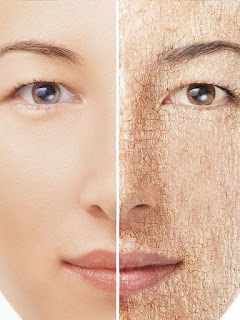 what cause dry skin in hindi
