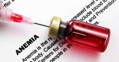 Cara Mengatasi Anemia atau Kurang Darah Ala Healty Optimum