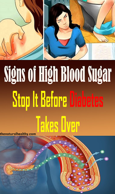 Indications of High Blood Sugar: Stop It Before Diabetes Takes Over #Diabetes #Sugar #Health #Remedies