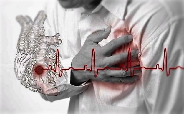 8 Hal Yang Menjadi Pemicu Serangan Jantung Yang Harus diwaspadai