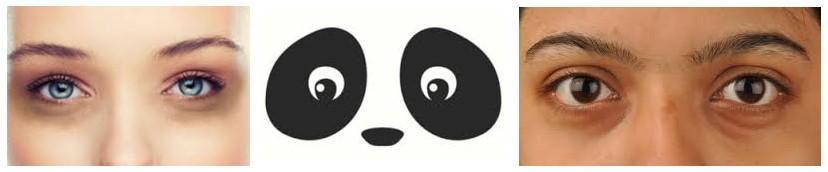 Bekerja Lembur sampai mendapatkan Mata Panda
