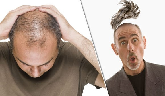 How Men Overcome Baldness Permanently