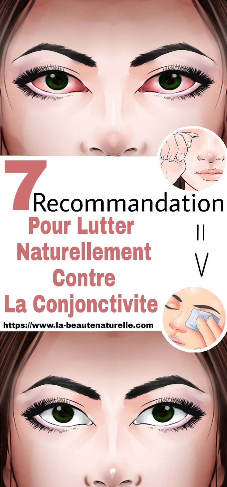 7 Recommandations Pour Lutter Naturellement Contre La Conjonctivite