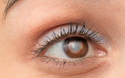 Symptoms Causes And Prevention of Cataracts