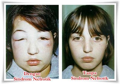 Obat Herbal Sindrom Nefrotik Terbaik