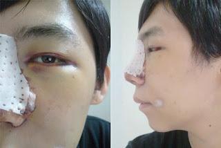 5 hari sesudah operasi plastik mata, operasi plastik hidung, anti aging di Wonjin 02