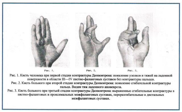 Контрактура Дюпюитрена Лечение в Харькове