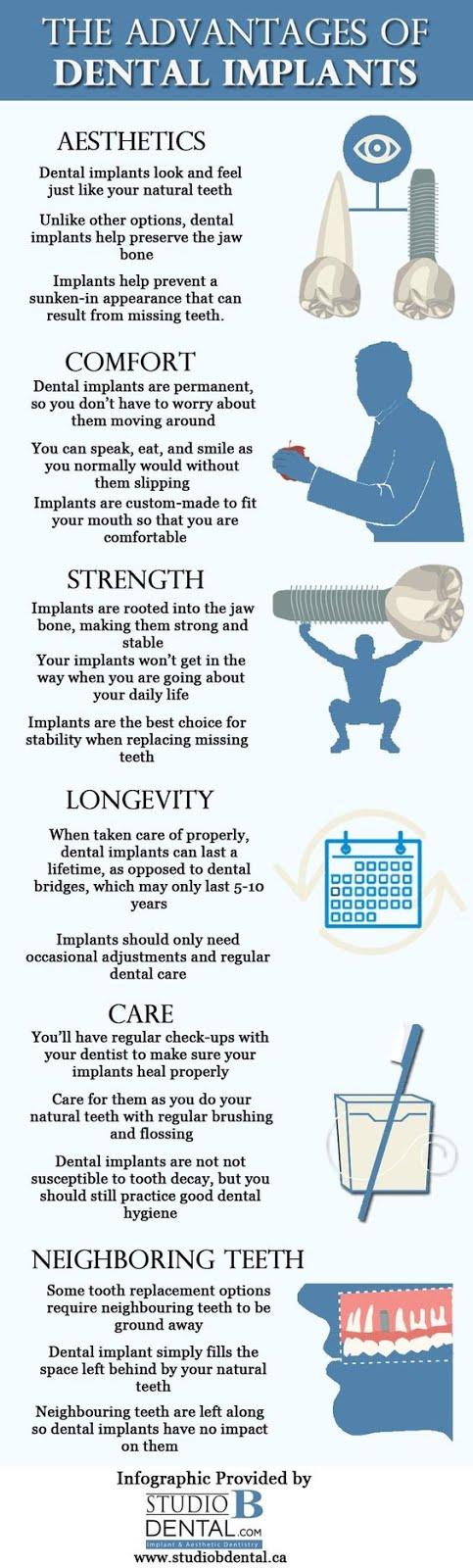 advantage of dental implants