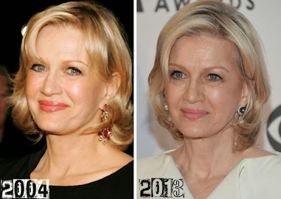 Diane Sawyer Plastic Surgery Facelift, Botox Injections ...
