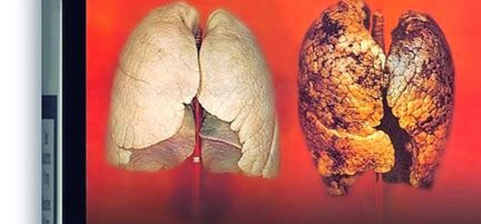 purifier les poumons