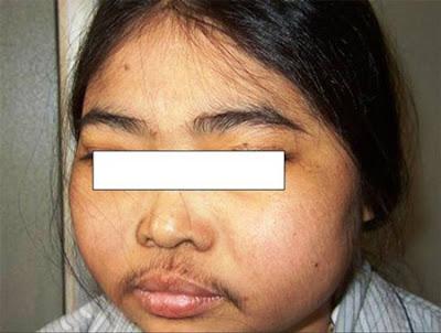Hội chứng Cushing gây rối loạn phân bố mỡ và nhiều vấn đề sức khỏe khác