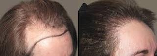 saç ekimi yaptıran kadınlar