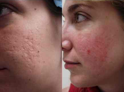 acne scars treatment before and after for long lasting pimples free of charge skin cartoon