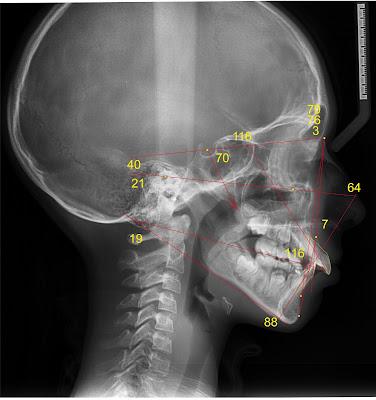 ТРГ пациента в боковой проекции с нанесенными измерениями
