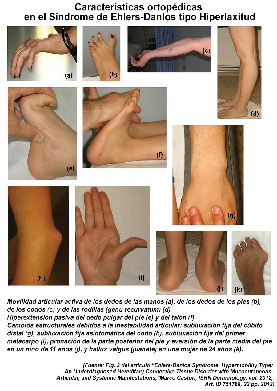 GenÉticaMente InCoRrecta: Características ortopédicas del Síndrome ...