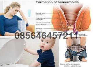 Cara Memasukkan Wasir Hemorrhoids Yang Keluar