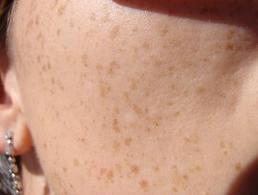Astuce pour faire disparaître les taches brunes sur la peau naturellement