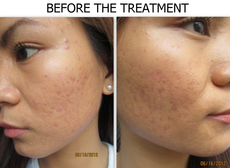 Real Asian Beauty Acne Scars Treatment Flawless Easy Peel