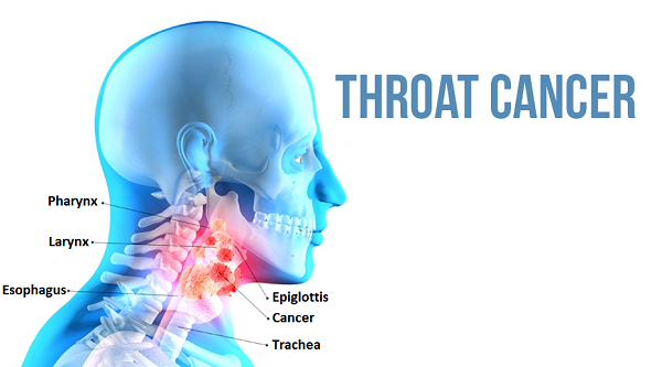 Important Information of Cancer of the Throat