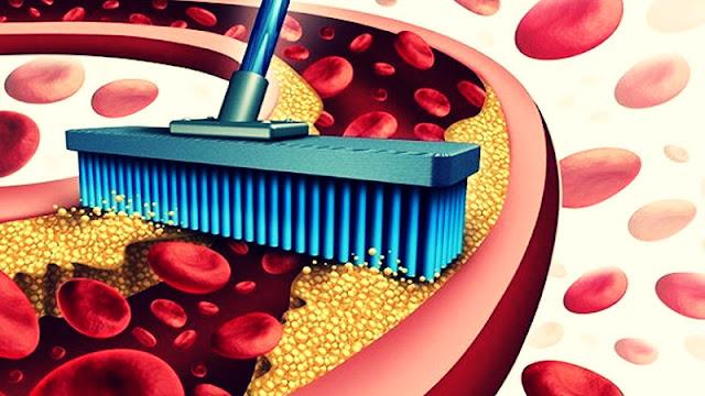 Obat Penurun Kolestrol LDL