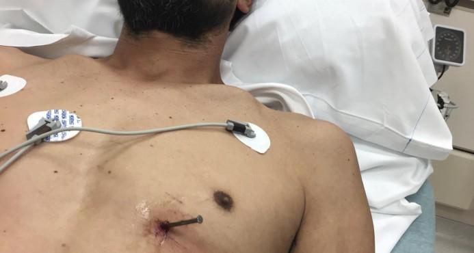 Hombre se salva por poco tras herirse con clavo en el pecho