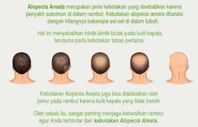 manfaat daun mangkokan untuk rambut keriting, masker mangkokan dan telur untuk rambut, mangkokan untuk rambut bayi, manfaat mangkokan untuk rambut keriting, khasiat mangkokan  untuk rambut lengkap, mangkokan membuat rambut keriting, mangkokan untuk rambut botak, shampo daun mangkokan